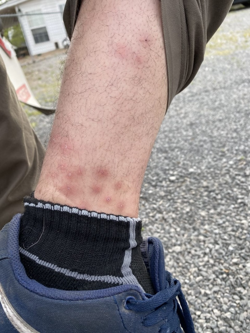 Tennessee bed bug bites on ankle