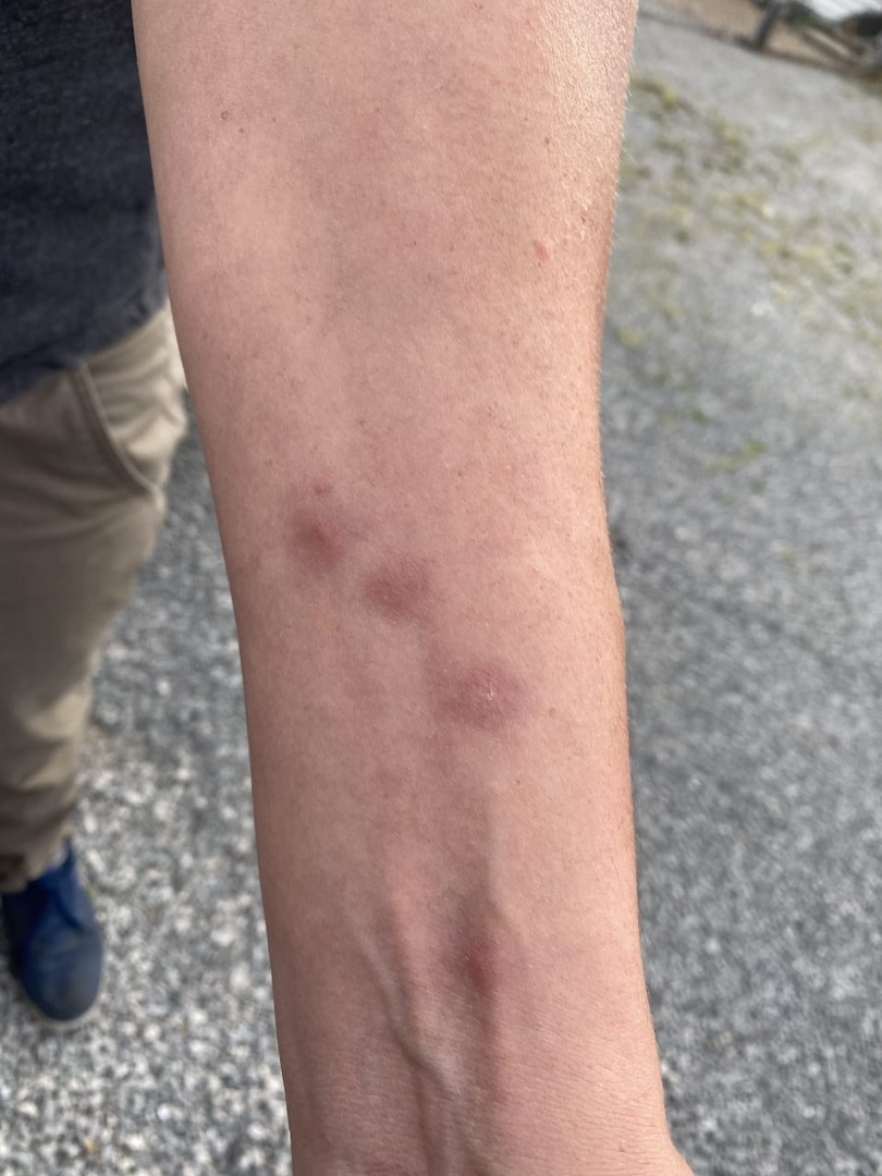 Tennessee bed bug bites on arm